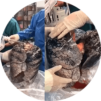 melindungi paru paru dari tar